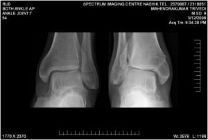 X- RAYS IMAGES
